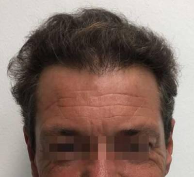 trapianto capelli 0301 dopo