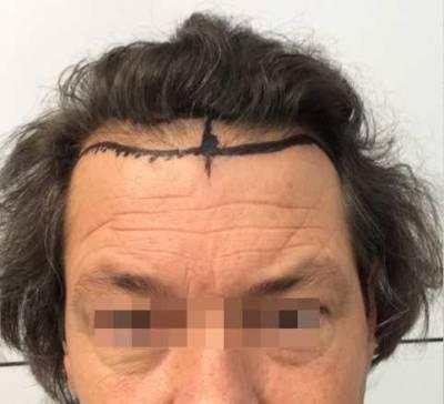 trapianto capelli 0301 prima