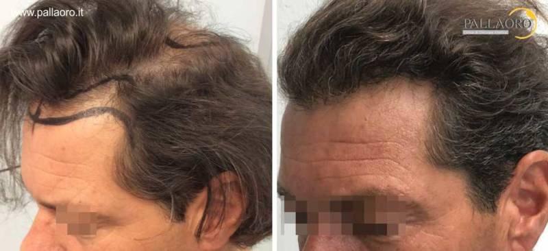 Trapianto capelli Micro FUE HD su alopecia androgenetica maschile