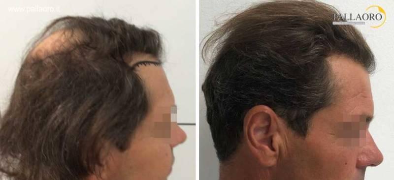 Trapianto capelli prima dopo: Copertura della chierica ad alta densità