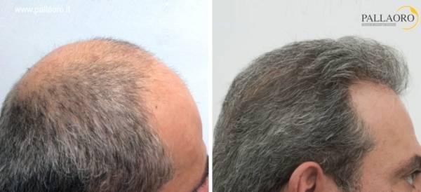 trapianto capelli 1005
