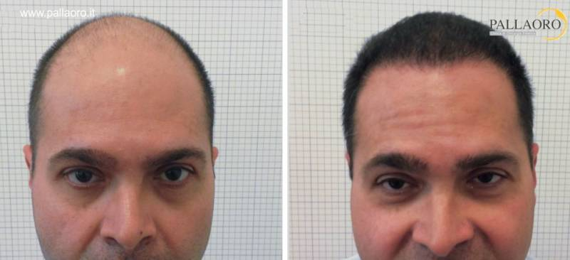 trapianto capelli 1007