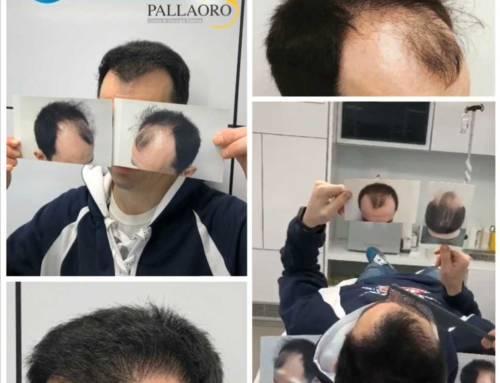 Trapianto capelli Micro FUE su calvizie in paziente giovane – Video
