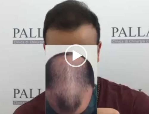 Trapianto capelli Micro FUE su calvizie esetesa dopo 7 mesi