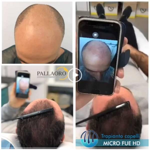 trapianto capelli calvizie image