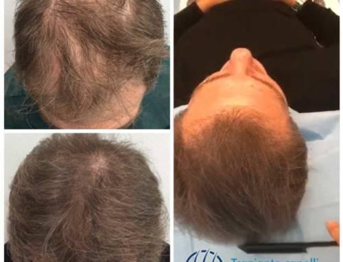 Trapianto capelli su diradamento severo uomo – Video