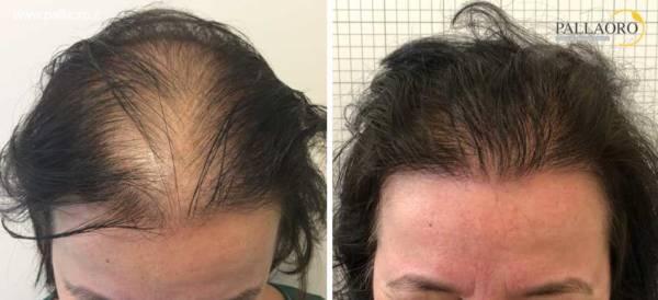 Trapianto capelli donne famose