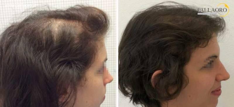 Trapianto capelli Micro FUE HD su alopecia androgenetica femminile