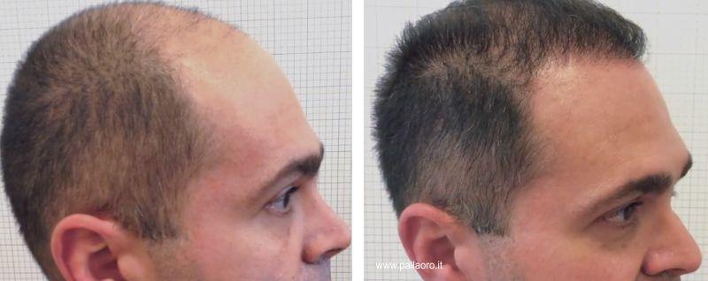 trapianto capelli costi, chirurgia estetica capelli prezzo
