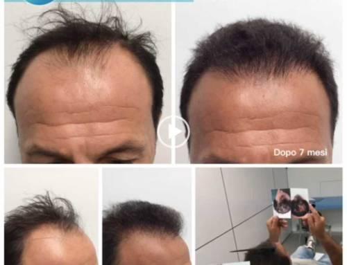 Trapianto capelli su diradamento e stempiatura profonda – Video