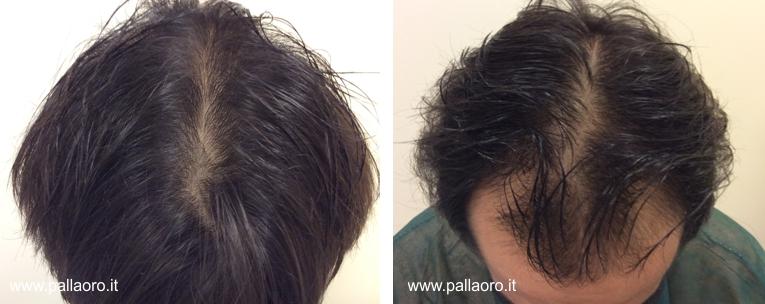 trapianto capelli mario 02