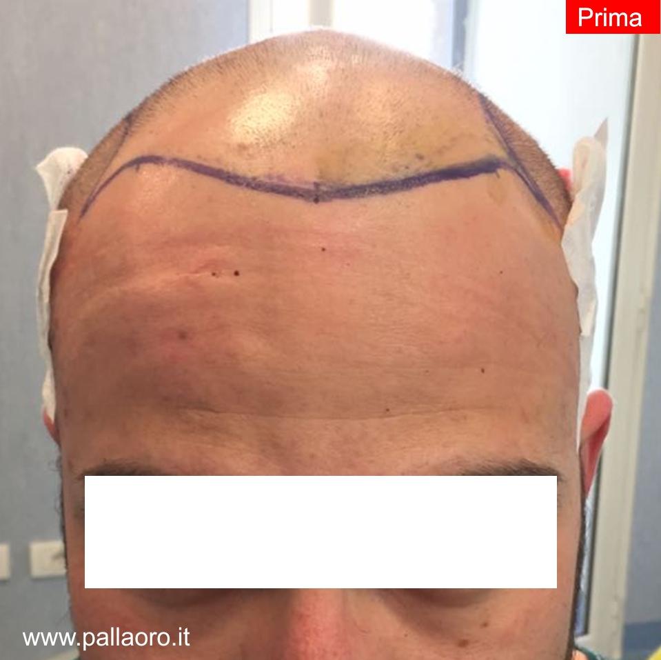 Trapianto capelli: Risultati - Prima della procedura