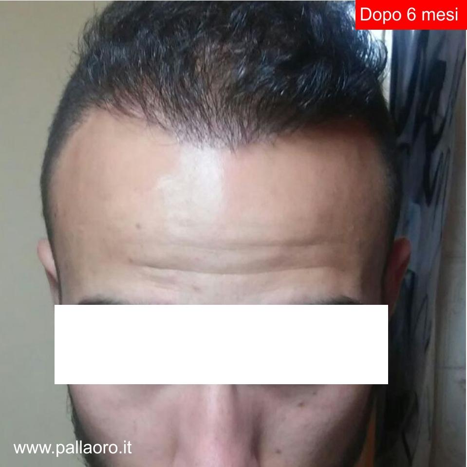 Trapianto capelli: Risultati - Dopo 6 mesi