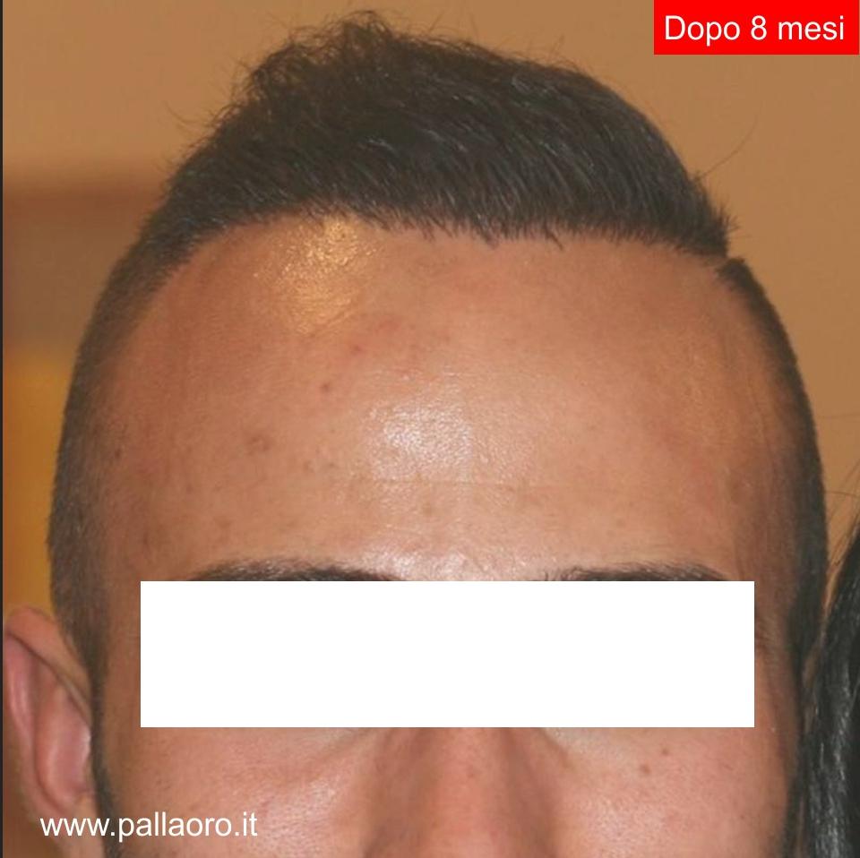 Trapianto capelli: Risultati - Dopo 8 mesi