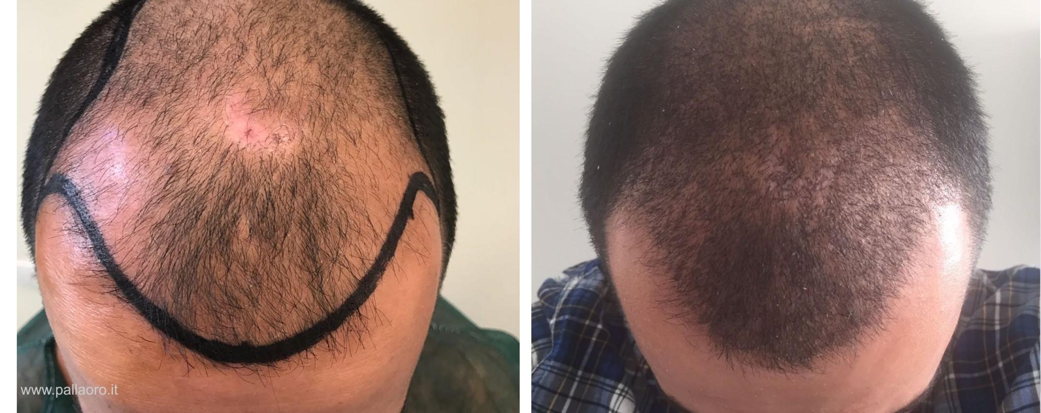 Trapianto capelli uomo prima dopo