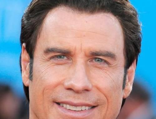 Trapianto capelli Vip – John Travolta