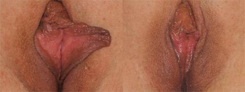 vaginoplastica foto prima dopo
