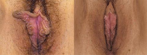 vaginoplastica foto prima dopo 02