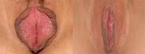 vaginoplastica foto prima dopo 03