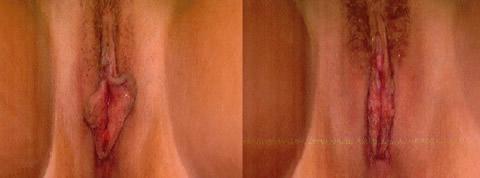 vaginoplastica foto prima dopo 07