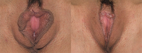 vaginoplastica foto prima dopo 08