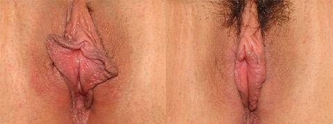 vaginoplastica foto prima dopo 09