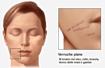 verruche virali sul viso