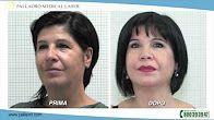Video blefaroplastica, rinoplastica e addominoplastica (Ursula)