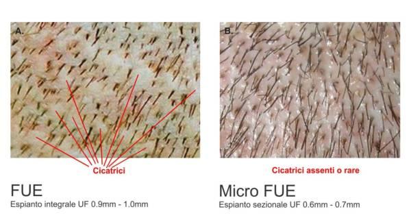 Zona donatrice a confronto tra FUE e Micro FUE