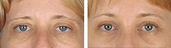 Sopracciglia abbassata - Chirurgia estetica