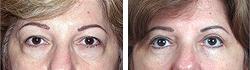 Borse sotto gli occhi - Chirurgia estetica