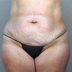 Liposuzione addominale e addominoplastica foto prima 06