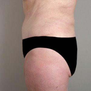 Liposuzione addominale e addominoplastica foto dopo 07