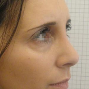 Rinoplastica foto dopo donna: Gibbo e punta grossa
