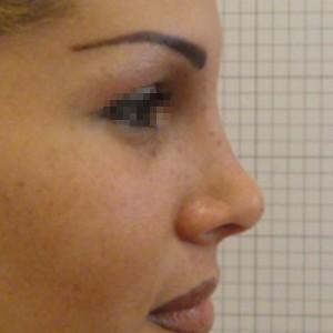 Rinoplastica foto dopo: Naso disarmonico