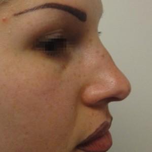 Rinoplastica foto prima: Naso disarmonico