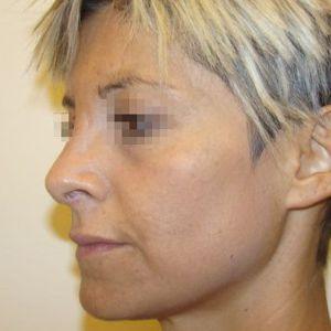 Rinoplastica foto dopo donna naso acquilino