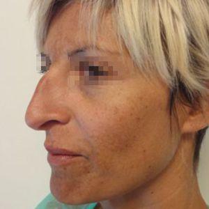 Rinoplastica foto prima donna naso acquilino