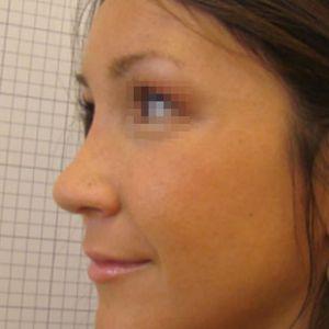 Rinoplastica foto dopo: Naso aquilino