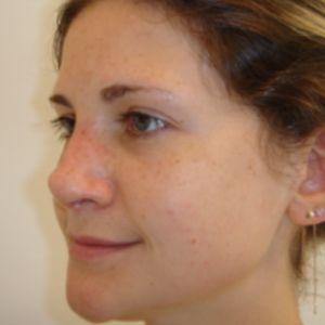 Rinoplastica foto dopo: Naso grande e marcatamente aquilino