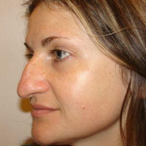 Rinoplastica foto prima: Naso grande e marcatamente aquilino