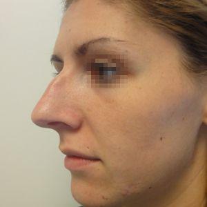 Rinoplastica foto prima: Naso grande con gibbo