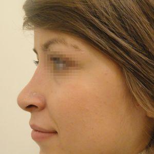 Rinoplastica foto dopo: Gibbo e ipertrofia delle cartilagini