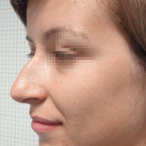 Rinoplastica foto prima: Gibbo e ipertrofia delle cartilagini
