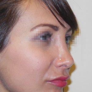 Rinoplastica foto dopo: Naso lungo con gibbo