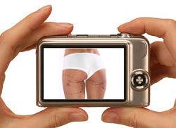 Chirurgia Estetica Foto