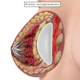 Protesi seno dietro la ghiandola