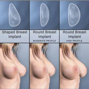 Protesi seno per la mastoplastica additiva