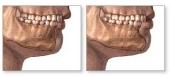 Mentoplastica con protesi