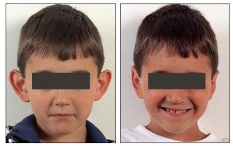 otoplastica bambini foto